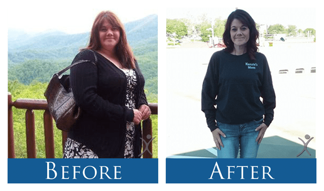 May - Gastric Sleeve Surgery Before and After Picture - Dr. Ismael Cabrera