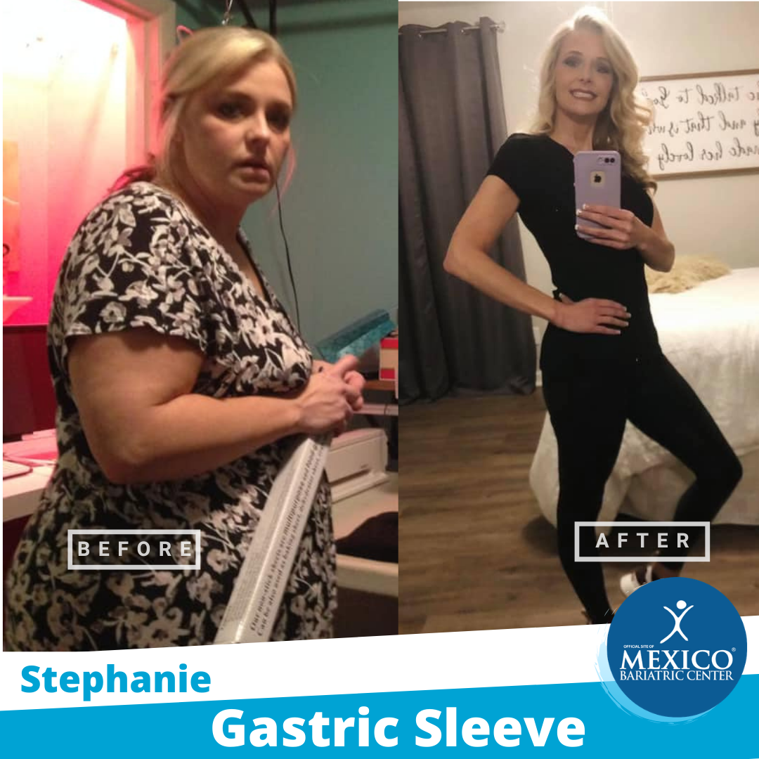 Before and After 2021 - Stephanie - gastric sleeve - Dr Cabrera - mexico bariatric center