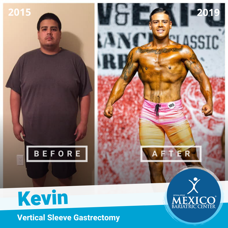 Kevin Ayala Total Transformation Body Builder - Mexico Bariatric Center